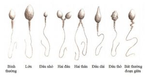 6 tiêu chuẩn đánh giá mức độ chuẩn xịn của tinh trùng 2
