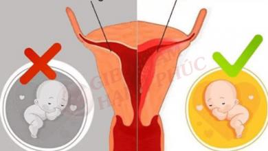 Cách khắc phục niêm mạc tử cung mỏng